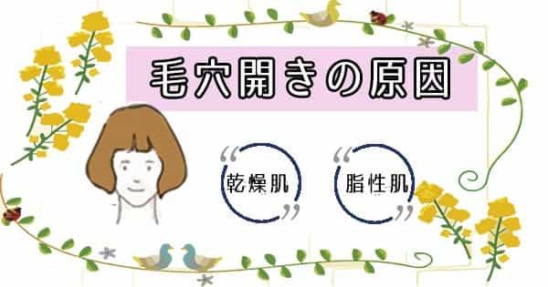 毛穴開き原因を乾燥肌・オイリー肌別に解説!【頬 鼻のスキンケア方法あり♪】